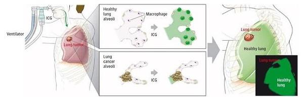 [연구성과] 박지호 교수 연구팀, 혈관 조영제로 폐암 종양 절제부위를 정확하게 그려내는 기술 개발.jpg